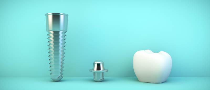 Jak wyglada zabieg implantacji w klinice Dlugosz Dlugosz